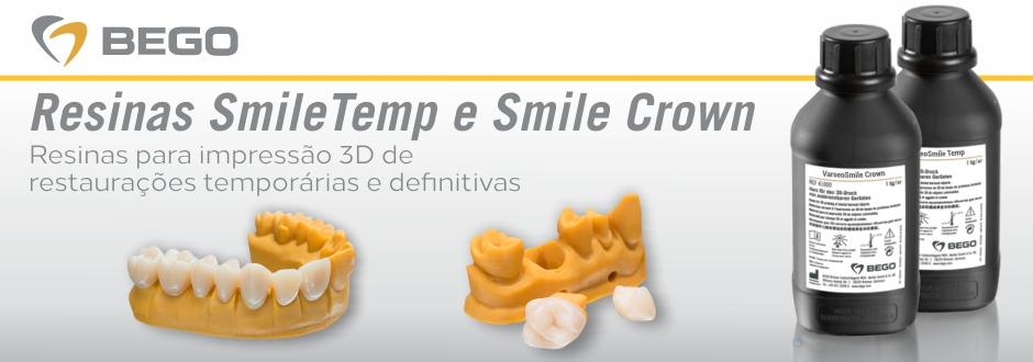 Smile Temp e Smile Crown